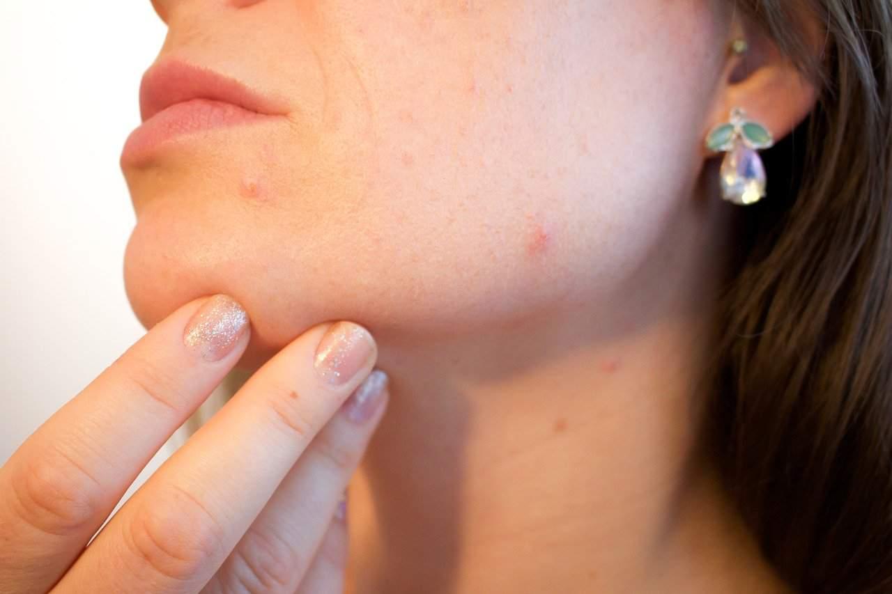 8 façons de réduire les pores de la peau sur votre visage
