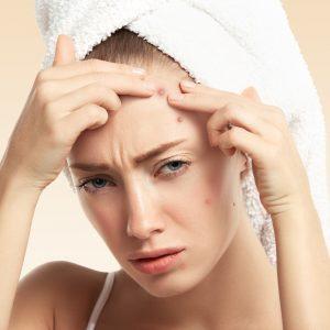 savon lait de chèvre acné
